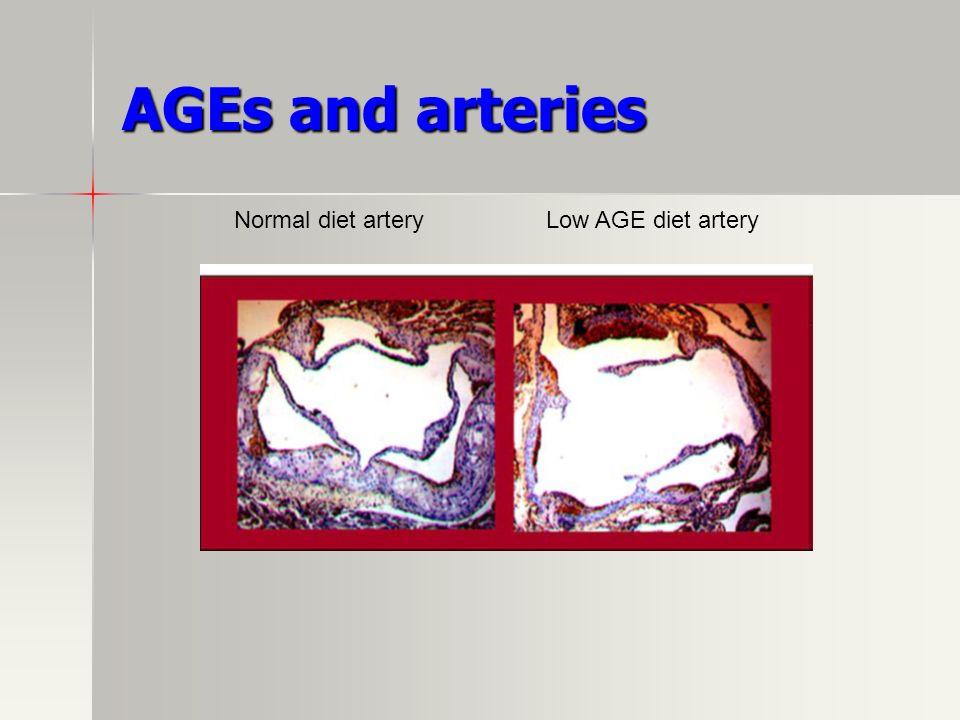 AGEs and arteries Normal diet artery Low AGE diet artery