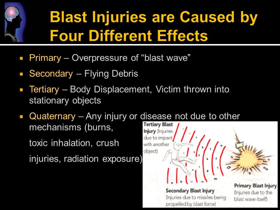 Blast Injuries are Caused by Four Different Effects
