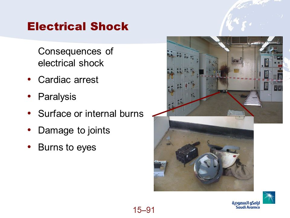 Electrical Shock Consequences of electrical shock Cardiac arrest