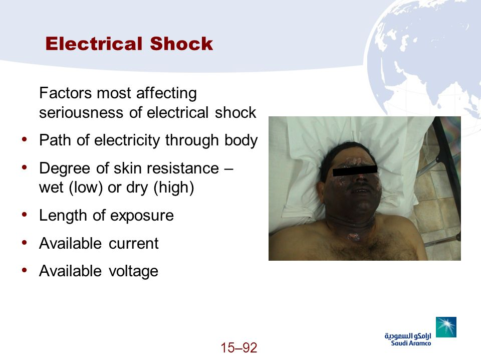 Electrical Shock Factors most affecting seriousness of electrical shock. Path of electricity through body.