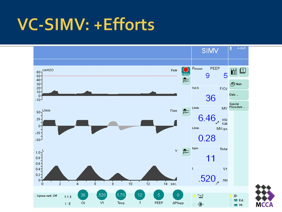 VC-SIMV: +Efforts