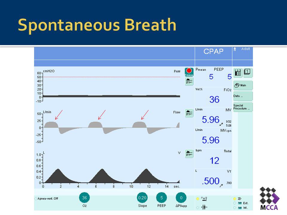 Spontaneous Breath