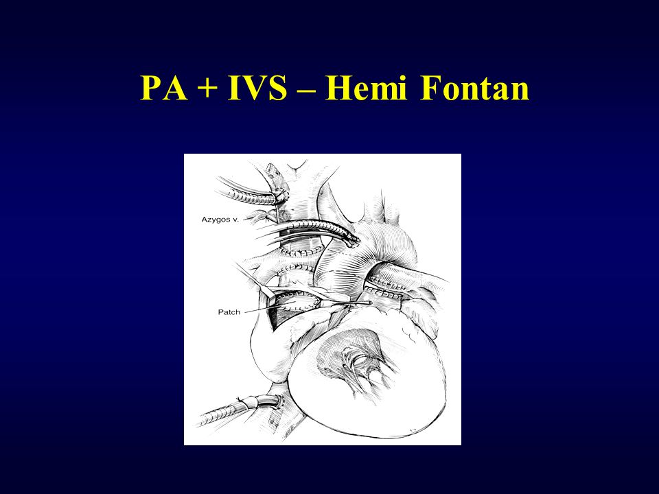 PA + IVS – Hemi Fontan