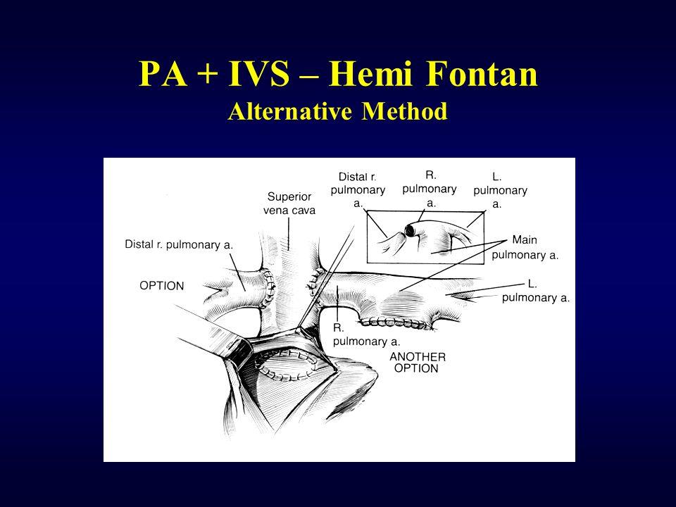 PA + IVS – Hemi Fontan Alternative Method