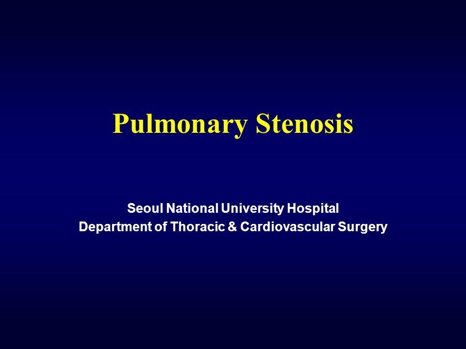 Pulmonary Stenosis Seoul National University Hospital