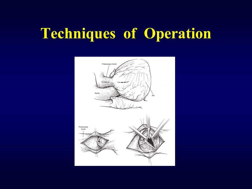 Techniques of Operation