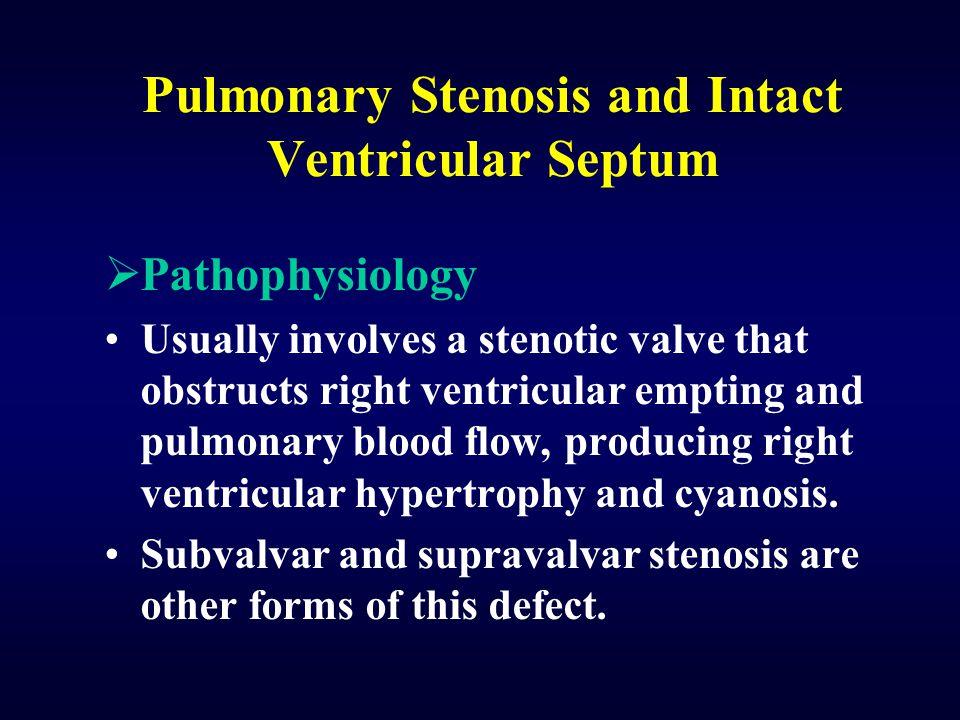 Pulmonary Stenosis and Intact Ventricular Septum