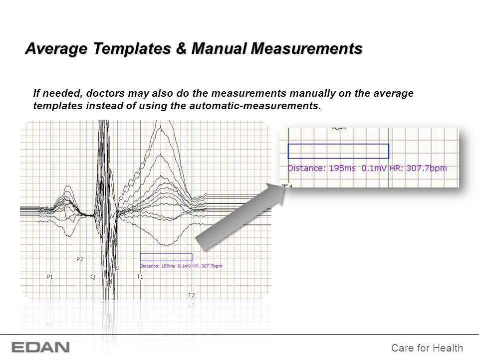 Average Templates & Manual Measurements