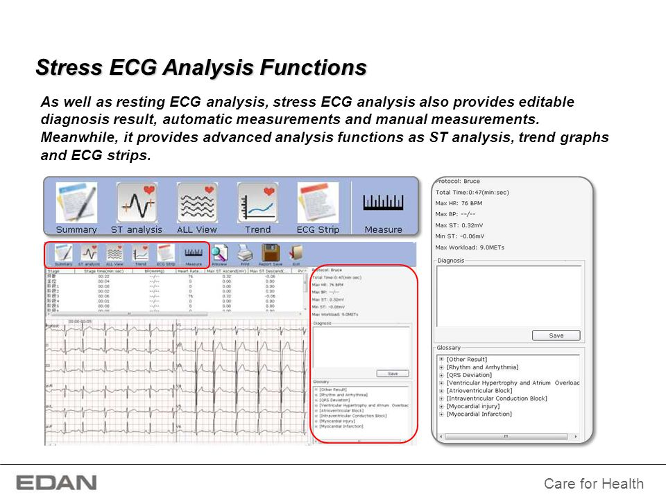 Stress ECG Analysis Functions