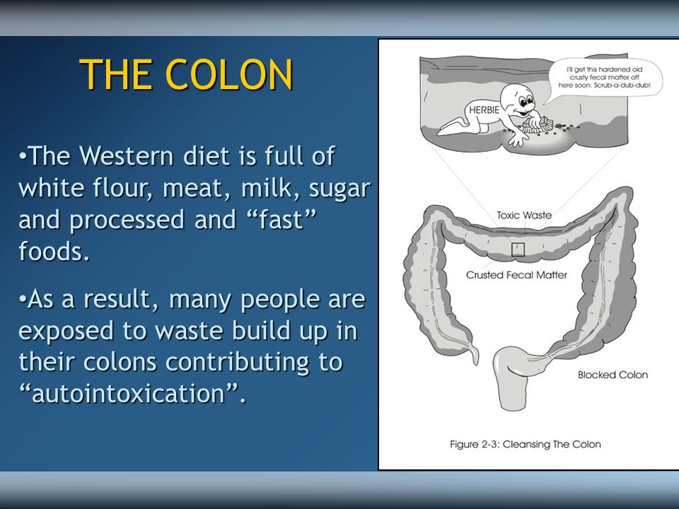 THE COLON The Western diet is full of white flour, meat, milk, sugar and processed and fast foods.