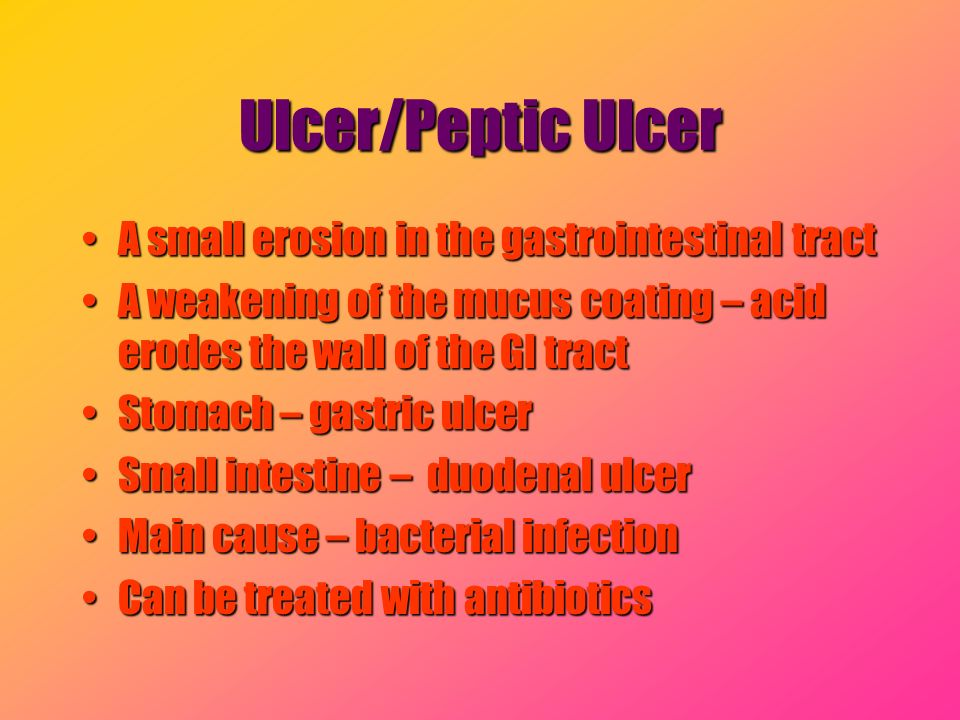 Ulcer/Peptic Ulcer A small erosion in the gastrointestinal tract