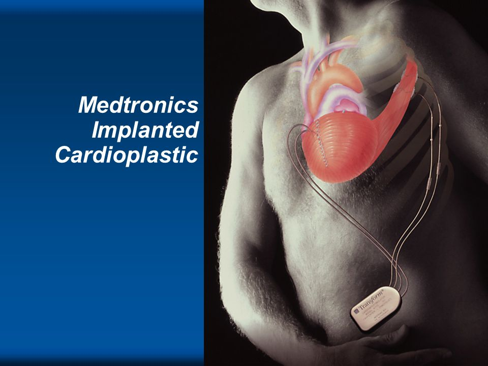 Medtronics Implanted Cardioplastic