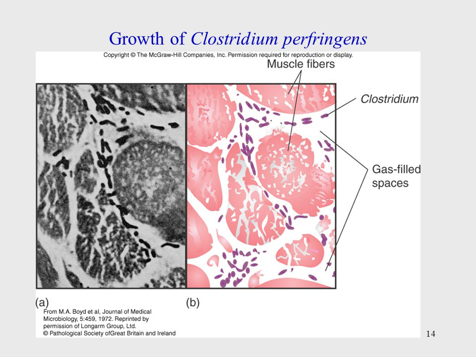 Growth of Clostridium perfringens