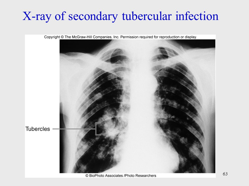 X-ray of secondary tubercular infection