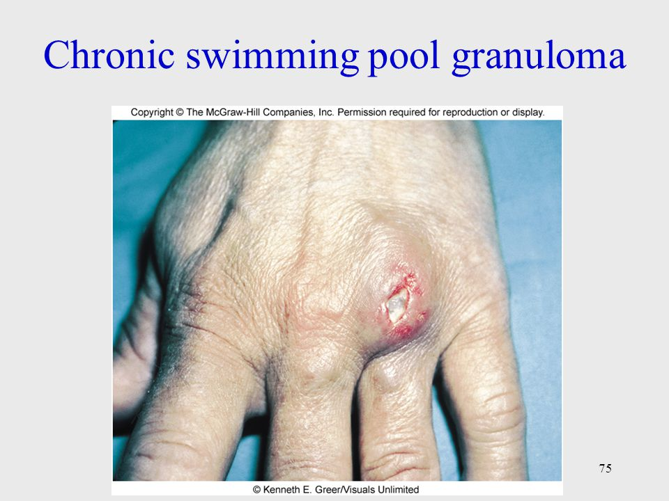 Chronic swimming pool granuloma
