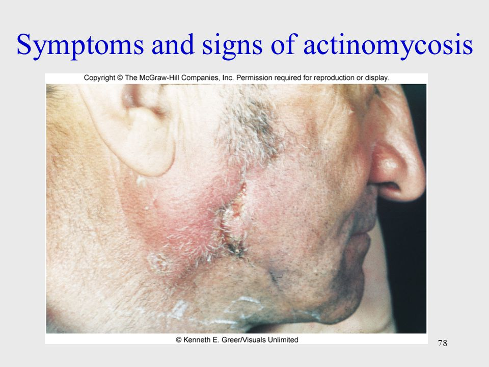 Symptoms and signs of actinomycosis