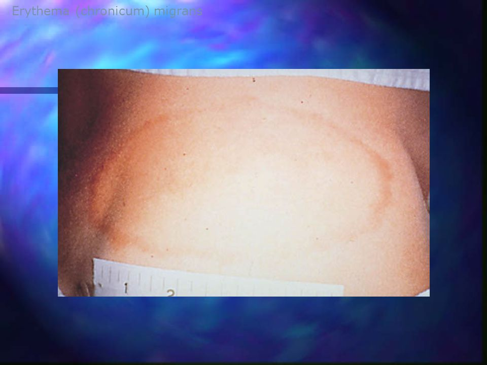 Erythema (chronicum) migrans