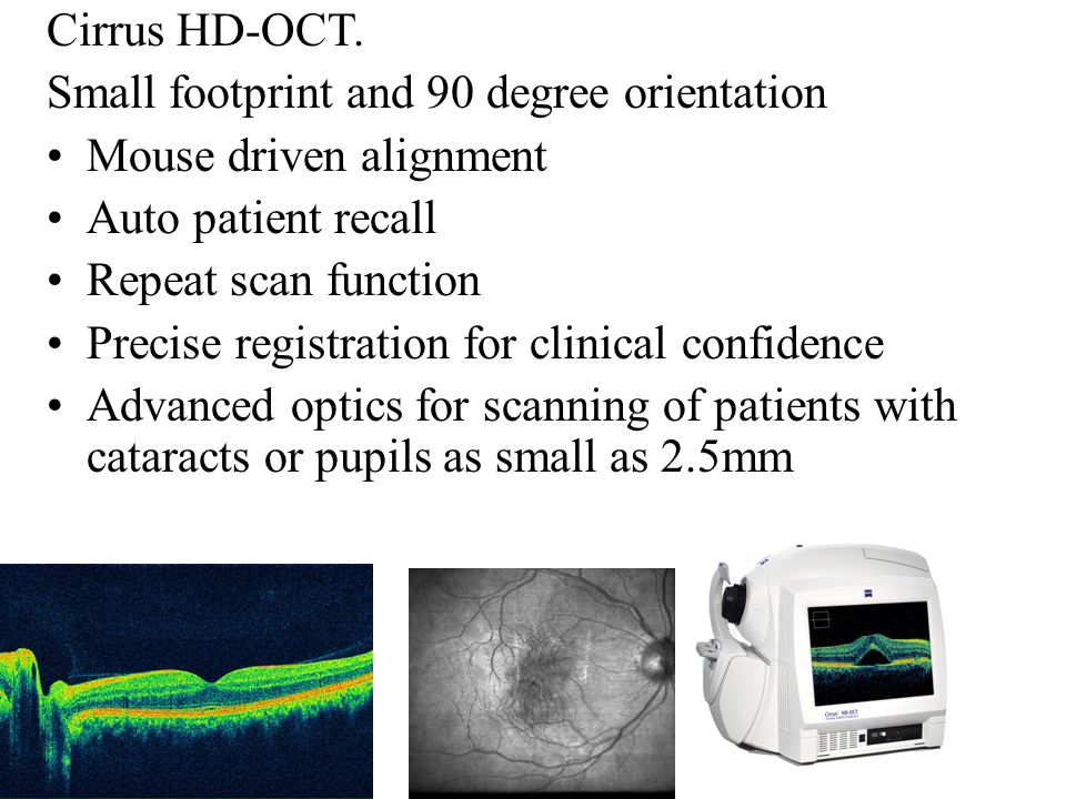 Cirrus HD-OCT. Small footprint and 90 degree orientation. Mouse driven alignment. Auto patient recall.