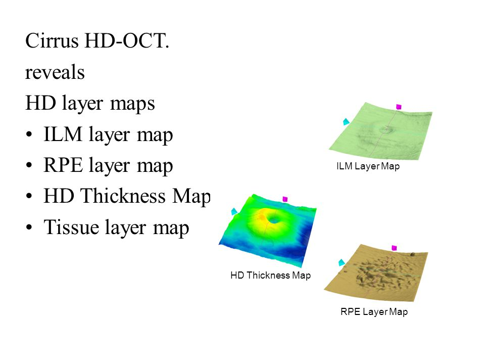 Cirrus HD-OCT. reveals HD layer maps ILM layer map RPE layer map