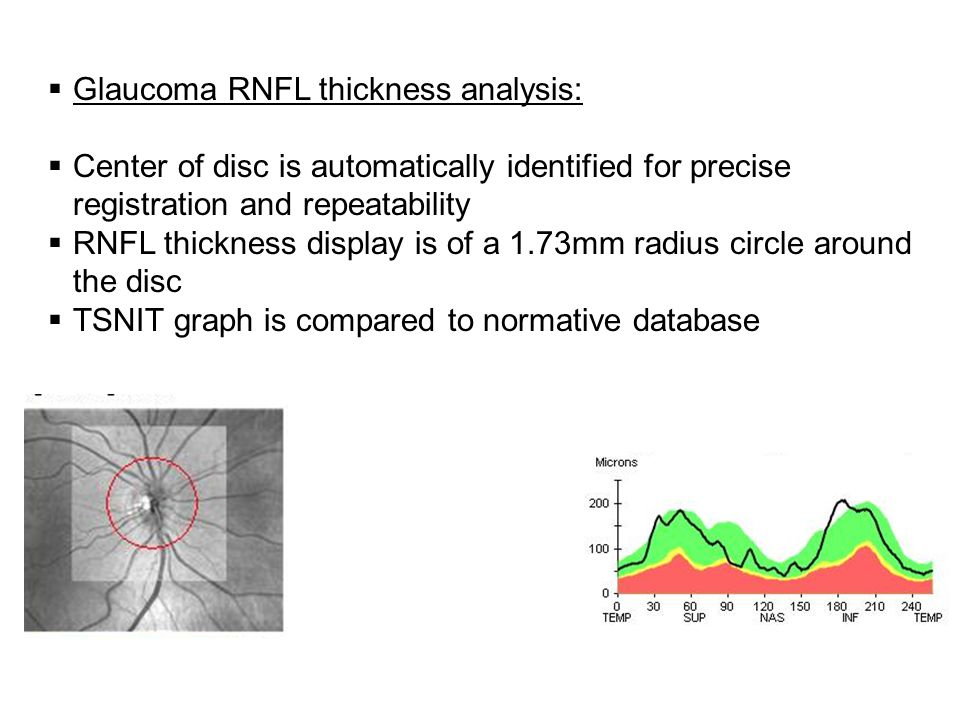 Glaucoma RNFL thickness analysis: