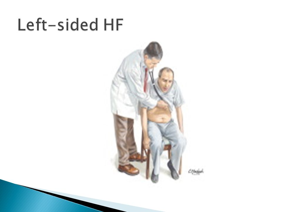 Left-sided HF