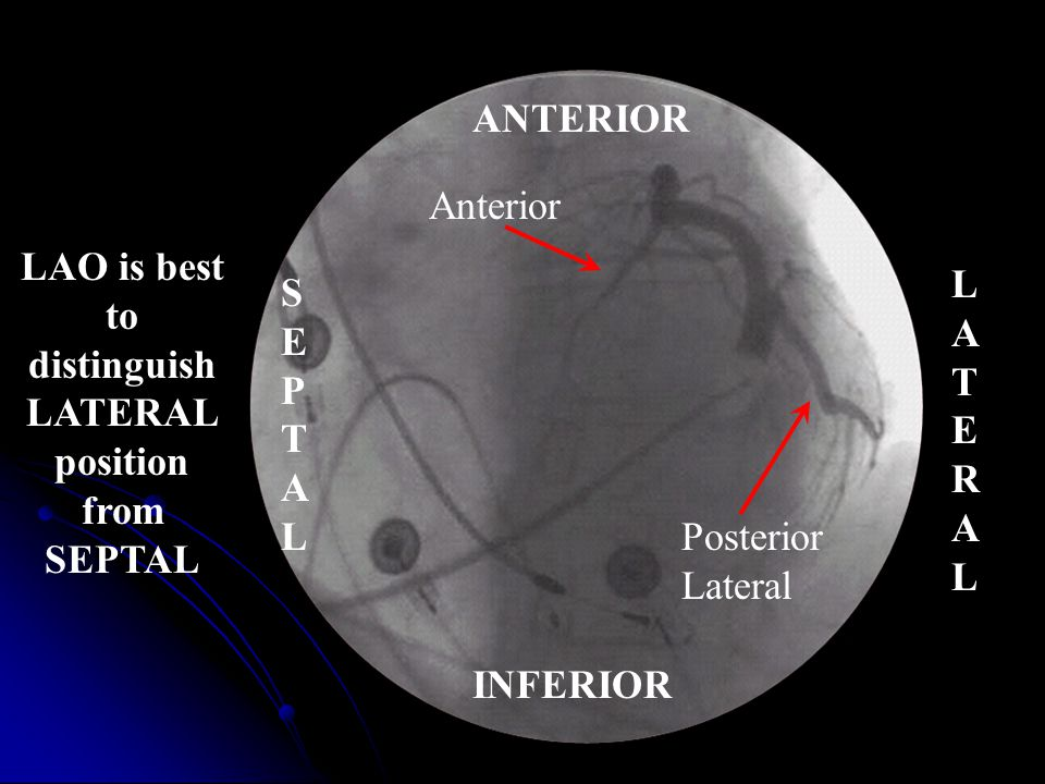 ANTERIOR Anterior. LAO is best to. distinguish. LATERAL position from. SEPTAL. LATERAL. SEPTAL.