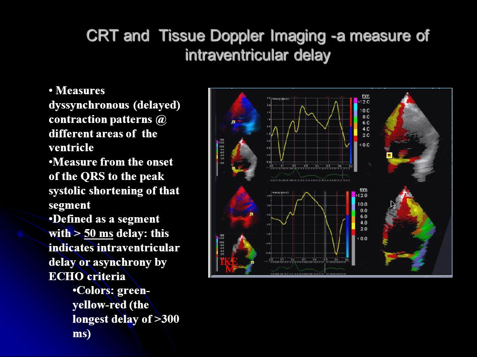 CRT and Tissue Doppler Imaging -a measure of intraventricular delay