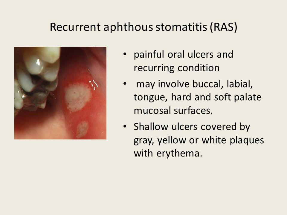 Recurrent aphthous stomatitis (RAS)