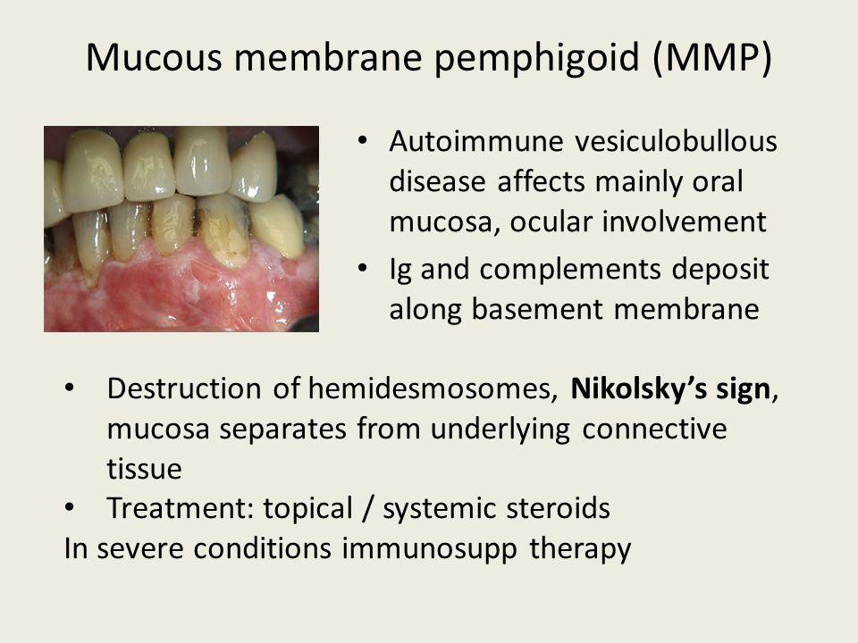 Mucous membrane pemphigoid (MMP)