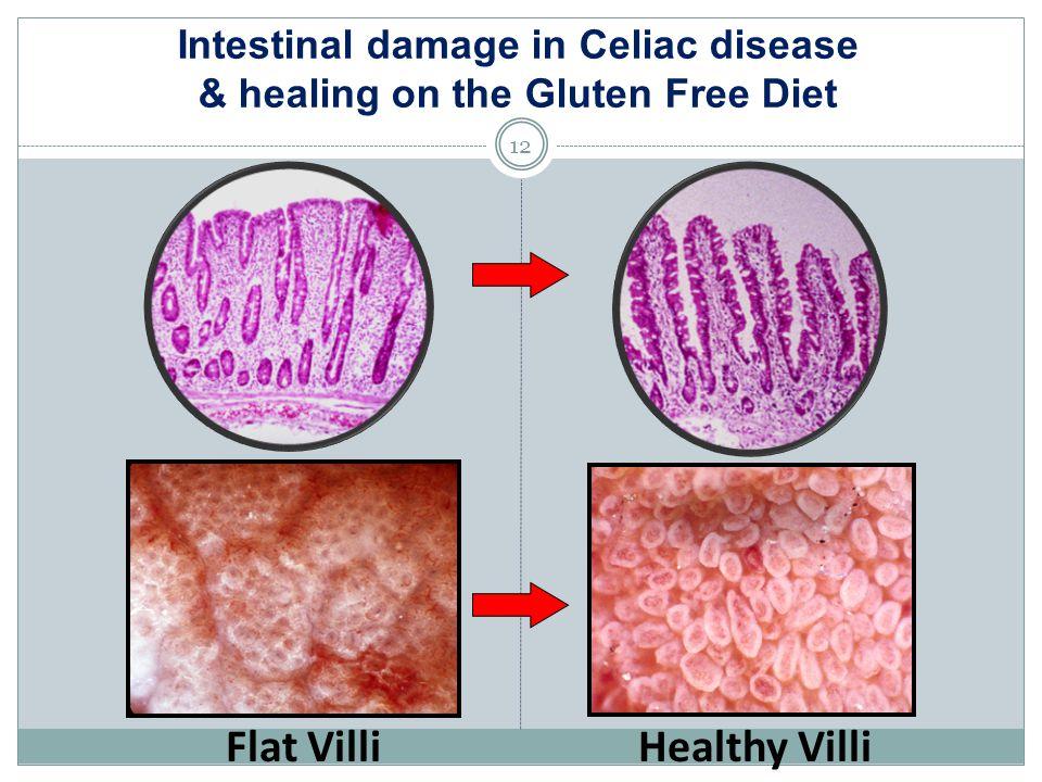 Intestinal damage in Celiac disease & healing on the Gluten Free Diet