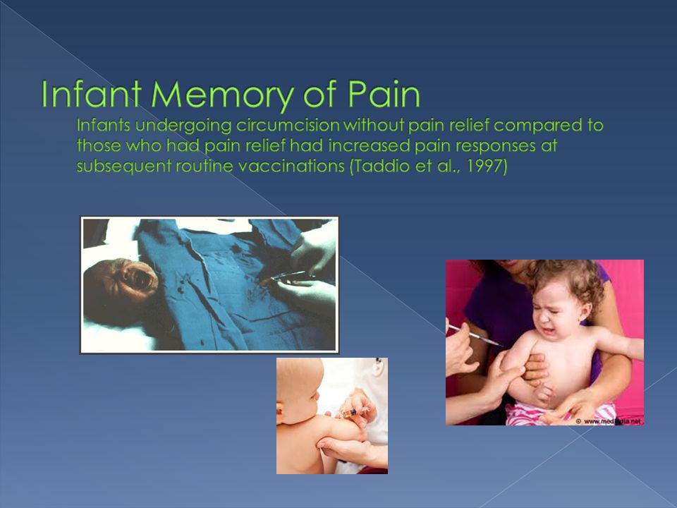 Infant Memory of Pain Infants undergoing circumcision without pain relief compared to those who had pain relief had increased pain responses at subsequent routine vaccinations (Taddio et al., 1997)