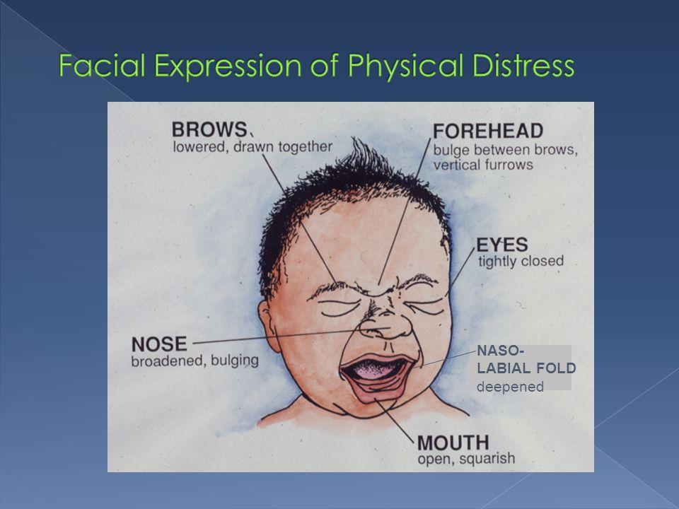 Facial Expression of Physical Distress