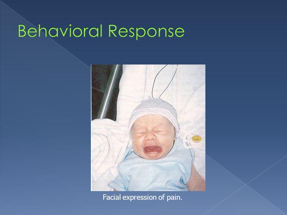 Behavioral Response Facial expression of pain.