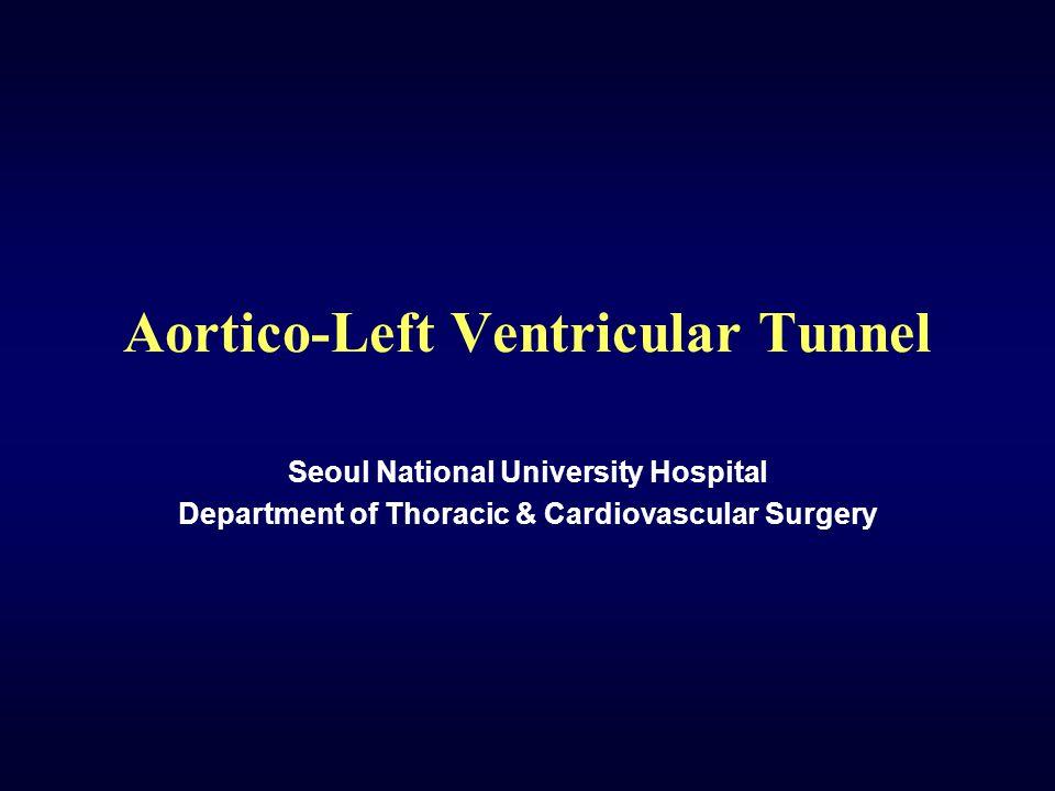 Aortico-Left Ventricular Tunnel