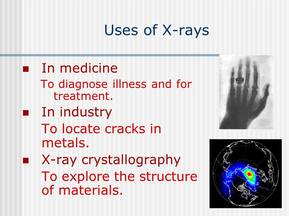 Uses of X-rays In medicine In industry To locate cracks in metals.
