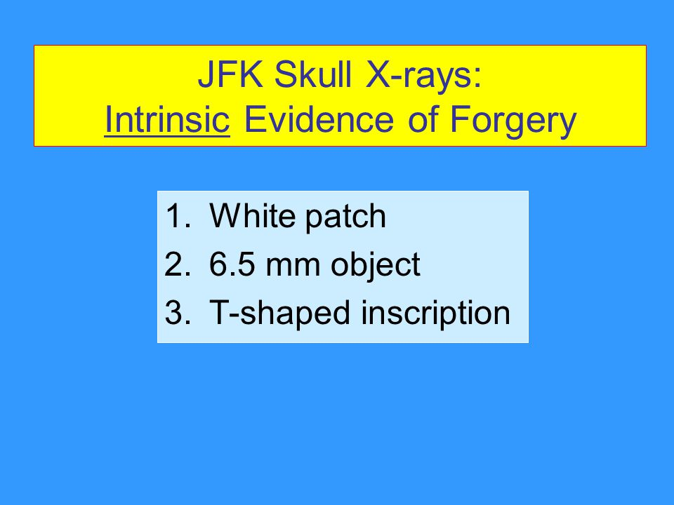 JFK Skull X-rays: Intrinsic Evidence of Forgery