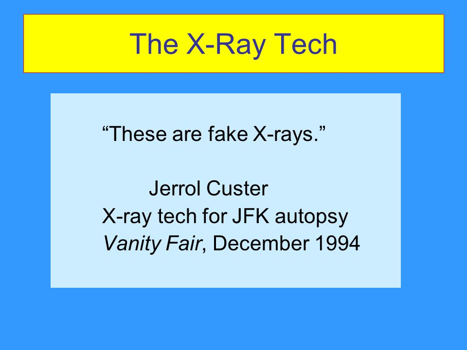 The X-Ray Tech These are fake X-rays. Jerrol Custer