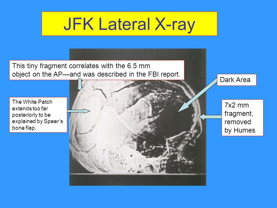 JFK Lateral X-ray This tiny fragment correlates with the 6.5 mm