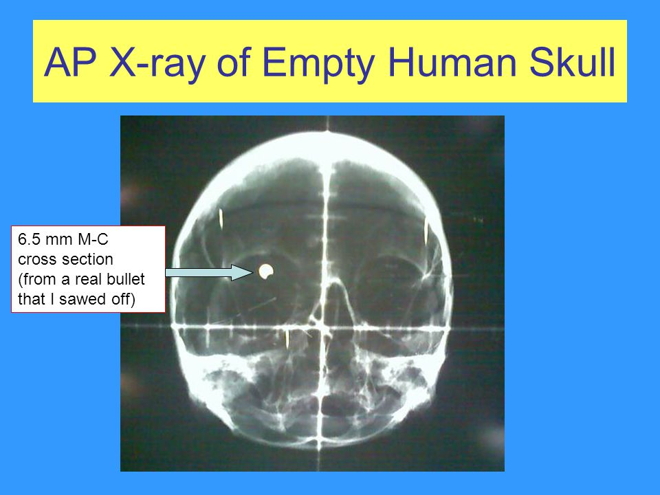 AP X-ray of Empty Human Skull