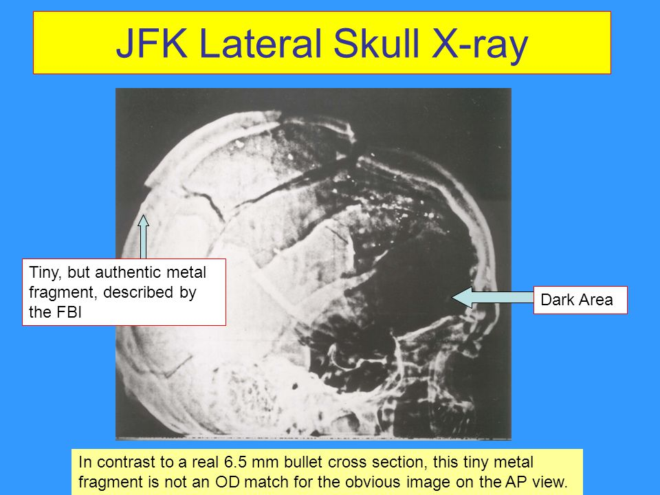 JFK Lateral Skull X-ray