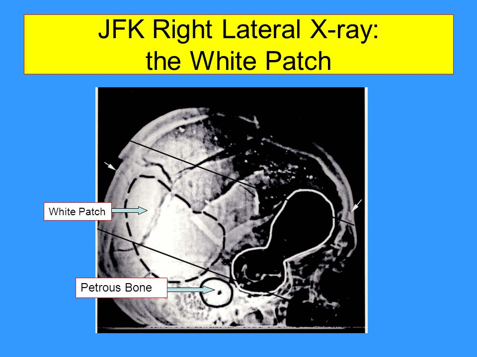 JFK Right Lateral X-ray: the White Patch