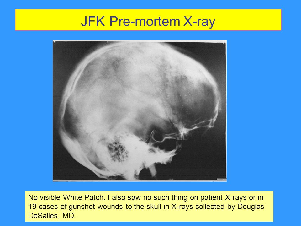 JFK Pre-mortem X-ray This X-ray of JFK, taken while he was alive, does not show a white patch.