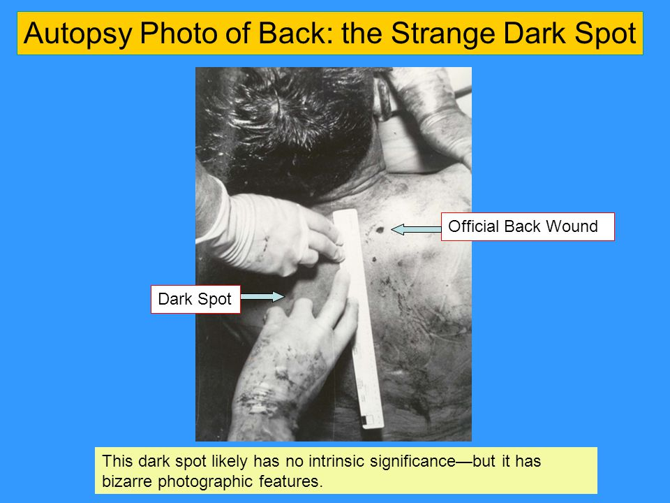 Autopsy Photo of Back: the Strange Dark Spot