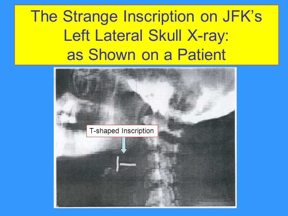 The Strange Inscription on JFK's Left Lateral Skull X-ray: as Shown on a Patient