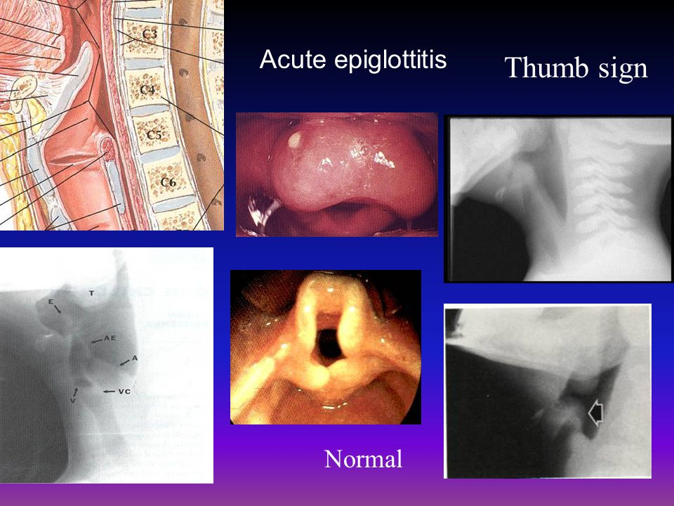 Acute epiglottitis Thumb sign Normal