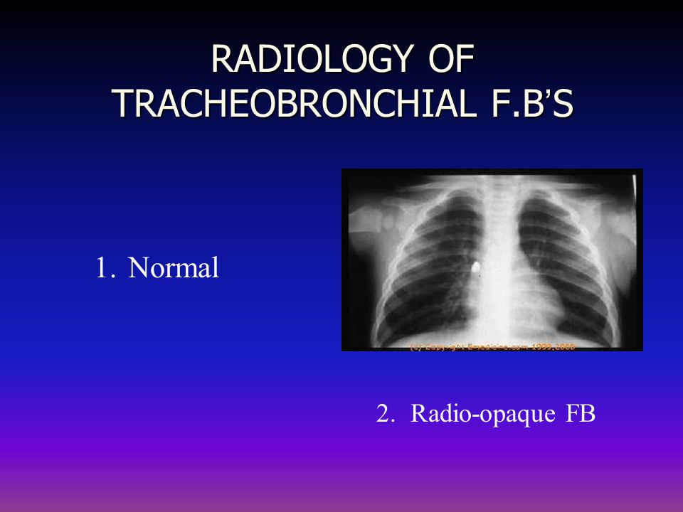 RADIOLOGY OF TRACHEOBRONCHIAL F.B'S