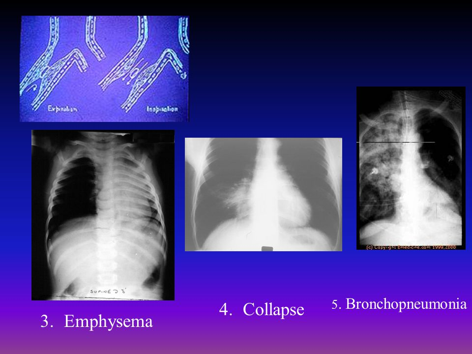 5. Bronchopneumonia Collapse Emphysema
