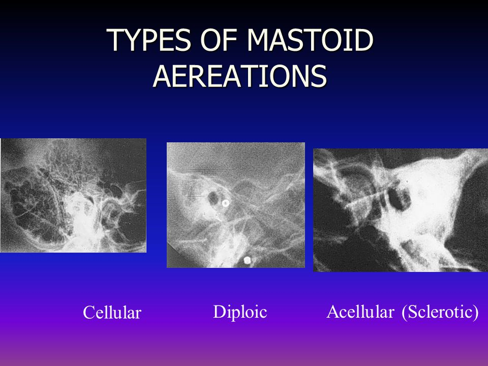 TYPES OF MASTOID AEREATIONS