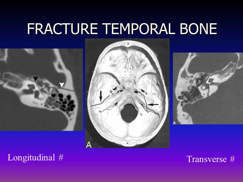 FRACTURE TEMPORAL BONE