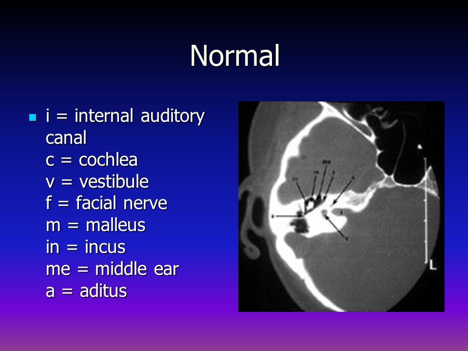 Normal i = internal auditory canal c = cochlea v = vestibule f = facial nerve m = malleus in = incus me = middle ear a = aditus.